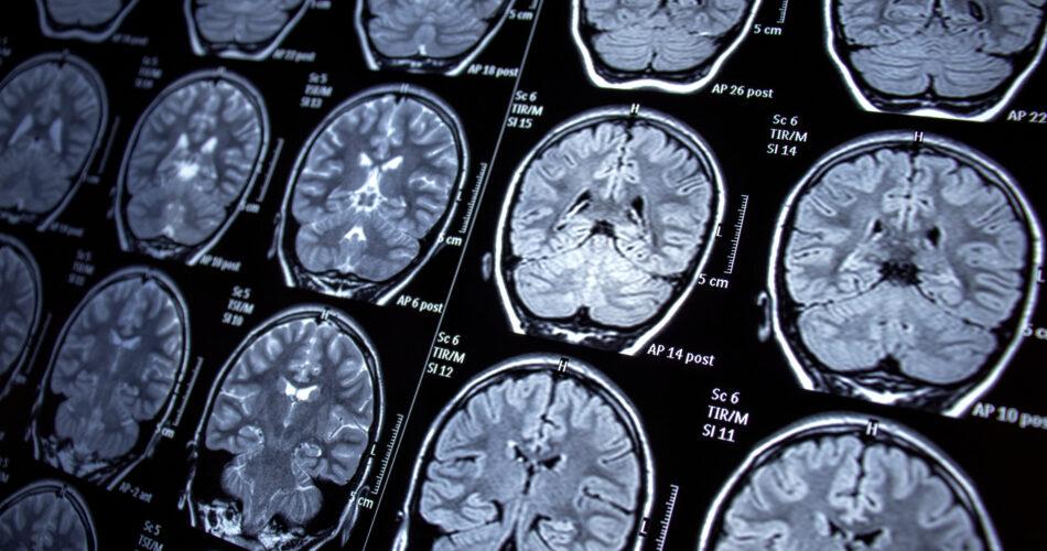 neurology, epilepsy, magnetic resonance imaging, mri, seizure, health