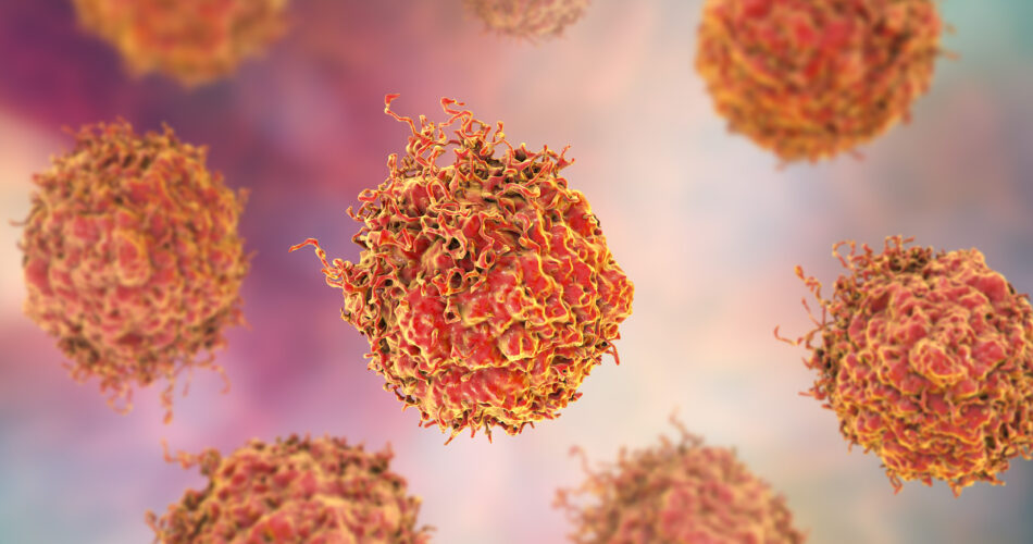 Prostate cancer cells, 3D illustration. Prostate cancer awareness image