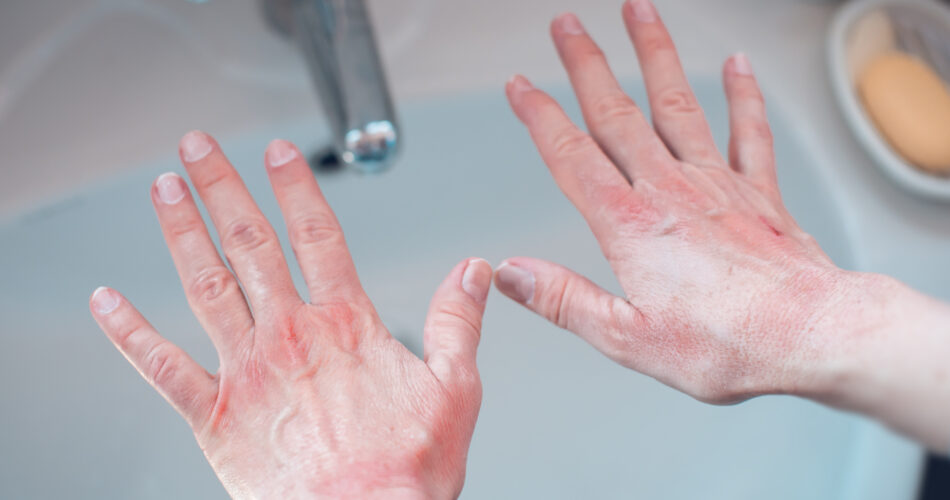 damaged hands from extensive washing